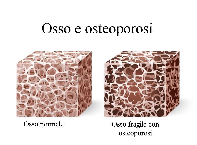 Osteoporosi: prevenzione e soluzioni naturali