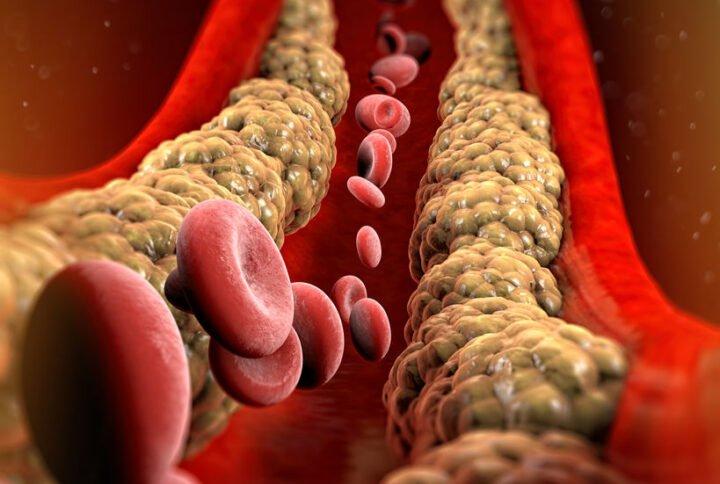 Colesterolo LDL: il tuo nemico