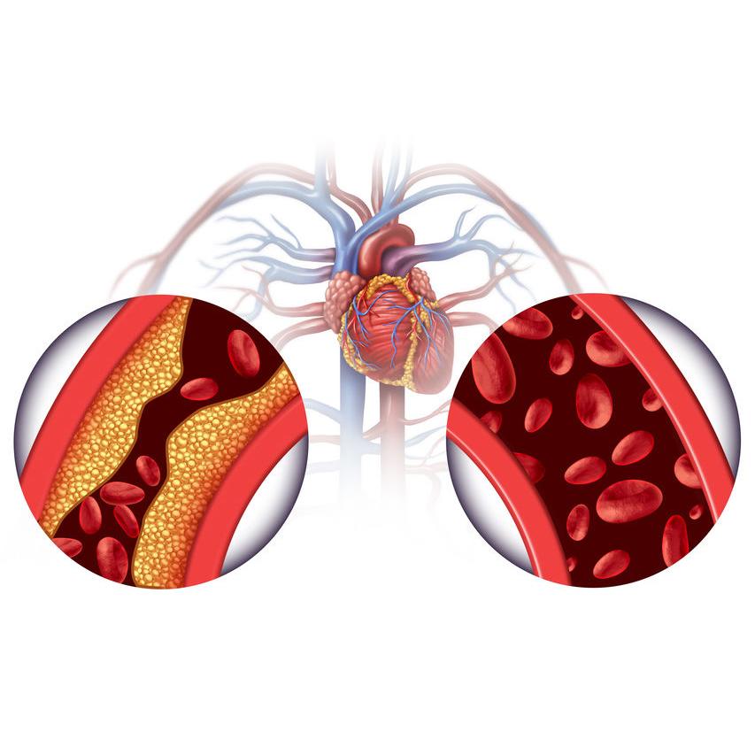 colesterolo e triglicerdi
