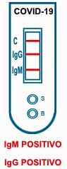 Test sierologico IgG e IgM positivo